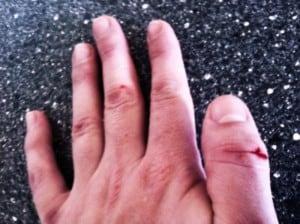 Blutende Finger 1 300x224
